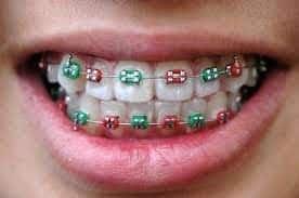 Aparat ortodontyczny stały. Aparat ortodontyczny. Brzesko Bochnia