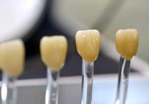 Czy korona protetyczna jest szkodliwa dla zęba?