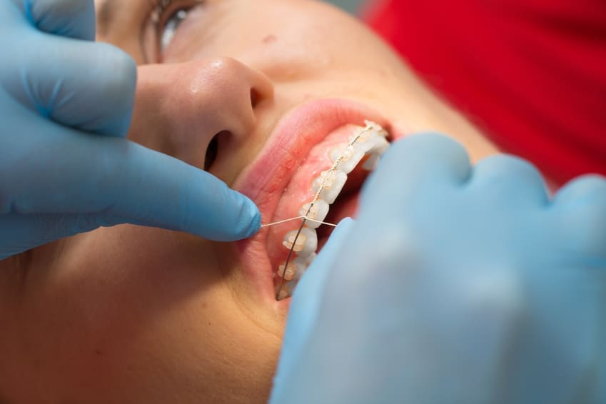 Wizyty kontrolne u ortodonty. Cena. Brzesko Bochnia