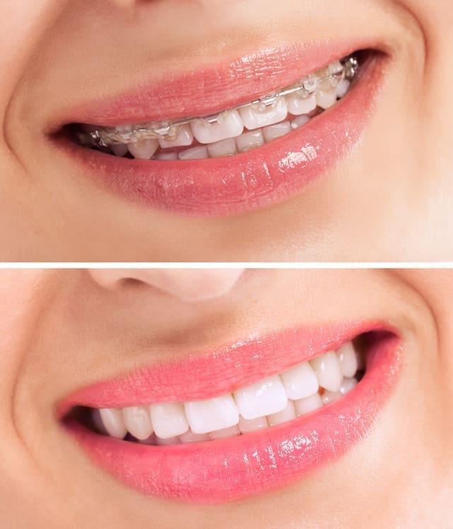 parat ortodontyczny przed i po