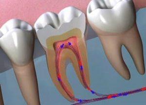 Leczenie kanałowe zęba. Leczenie kanałowe wciąży
