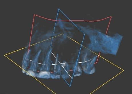 Zdjęcie tomograficzne