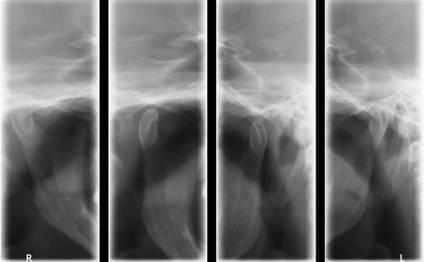 Zdjęcie stawów skroniowo-żuchwowych. Schorzenia