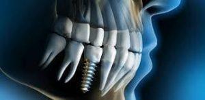 Implanty palenie papierosów. Chirurgia stomatologiczna. Brzesko Bochnia
