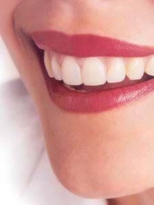 Aparat ortodontyczny przedipo. Opinie. Cena