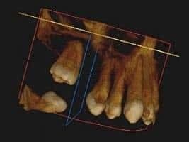 Tomografia zębów Brzesko Bochnia