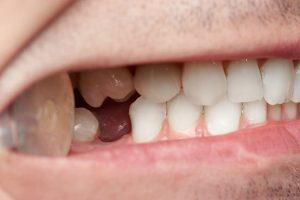 Brak zębów. Następstwa wobrębie twarzy ijamy ustnej