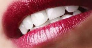 Przebarwienia zębów - wybielanie zębów