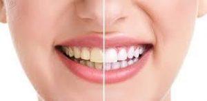 Wybielanie zębów nakładkowe Brzesko Bochnia
