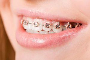 Aparat ortodontyczny stały. Aparat ortodontyczny. Cena aparatu