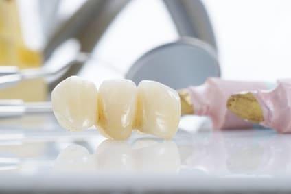 Uzupełnienie braku zębów mostem czasowym