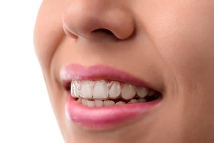 Uzupełnienie braku zębowego szyną Essix