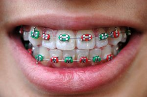 Elastyczne wyciągi ortodontyczne. Jak nosić gumki doaparatu ortodontycznego?