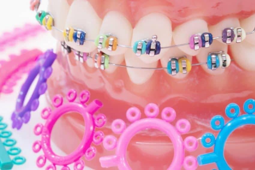 Wyciągi ortodontyczne. Gumki ortodontyczne. Brzesko Bochnia