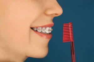 Jak dbać ozęby nosząc aparat. Aparat ihigiena Brzesko Bochnia
