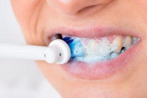 Implanty zębowe higiena. Metody oczyszczania zębów Brzesko Bochnia