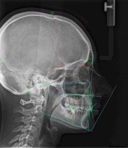 Zdjęcie cefalometryczne zębów. Dawka promieniowania ? Ile kosztuje. Brzesko Bochnia