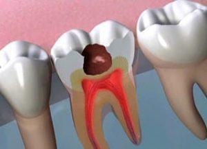 Zgorzel izapalenie miazgi zęba. Przyczyny, objawy ileczenie
