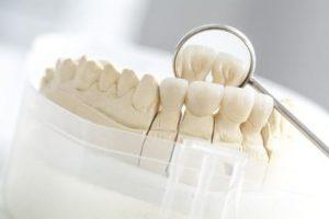 Korona zęba rodzaje iopinie. Korona zęba - cena