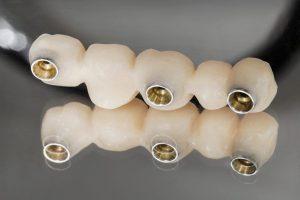Proteza zębowa. Proteza stała. Proteza ruchoma. Brzesko Bochnia