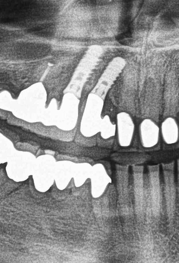 Zdjęcie panoramiczne zębów. Cena. Pantomogram. Panorama