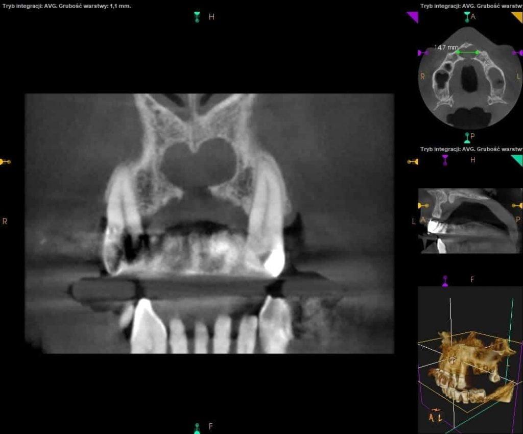 Tomografia zębów CBCT. Cena. Zdjęcie tomograficzne zębów.
