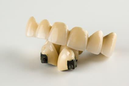 Most porcelanowy nametalu, porcelanowy nacyrkonie amost pełnoceramiczny. Ile kosztują mosty protetyczne?