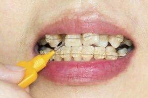 Powikłania leczenia ortodontycznego. Próchnica aaparat ortodontyczny