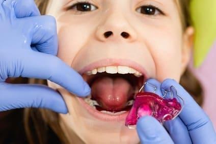 Aparat ortodontyczny dla dzieci - cena, rodzaje, wskazania. Kiedy dziecko powinno nosić aparat nazęby?