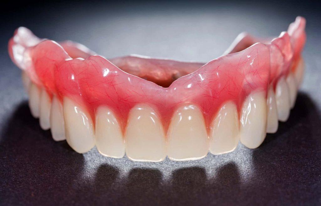 Protetyka stomatologiczna. proteza zębowa. Brzesko Bochnia
